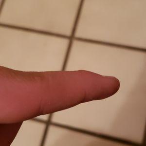 My broken finger